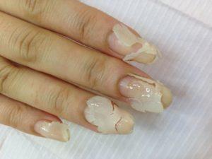 爪(ネイル)がボロボロ状態